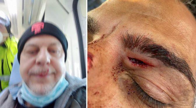 """POLIZIOTTI MASSACRATI DA IMMIGRATO: """"NON POSSIAMO REAGIRE"""" – FOTO"""